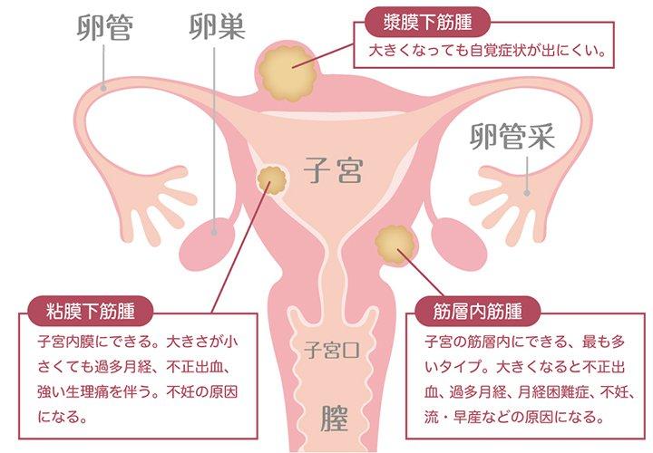 筋腫 注射 子宮 子宮筋腫のリュープリン治療で副作用(ホットフラッシュ)がつらかった話