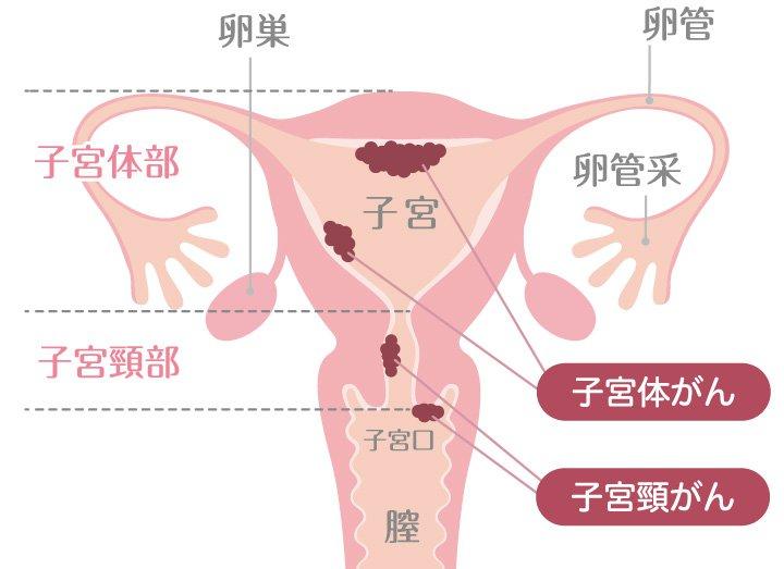 子宮がんについて