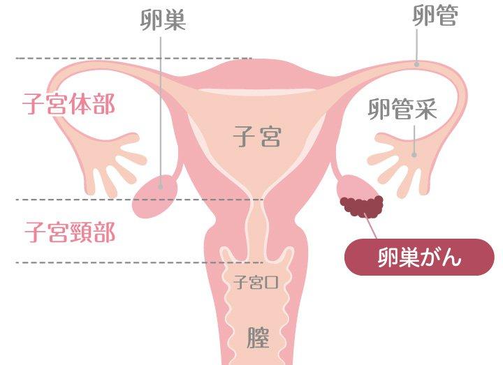 卵巣がんについて
