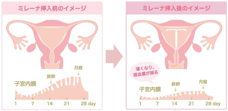 効果2:過多月経・月経困難症の症状緩和