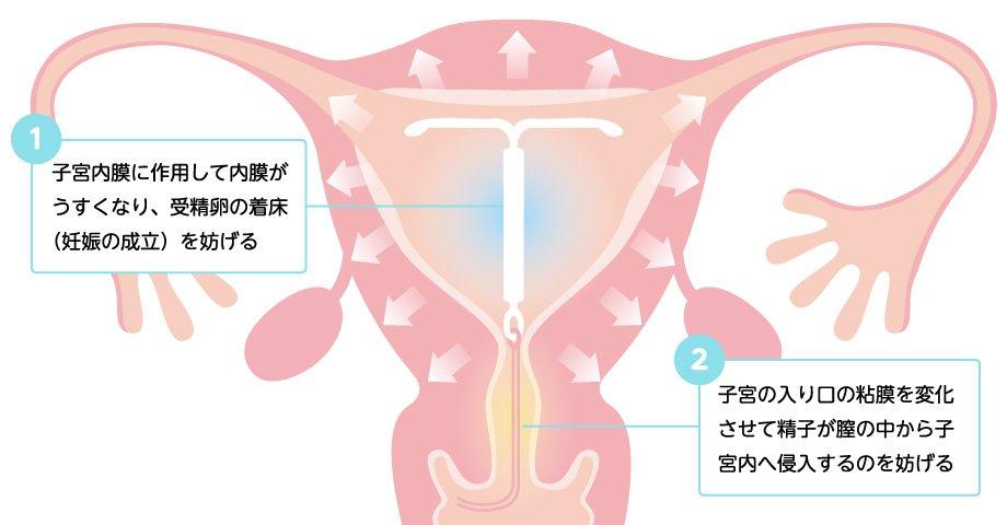 効果1:避妊効果