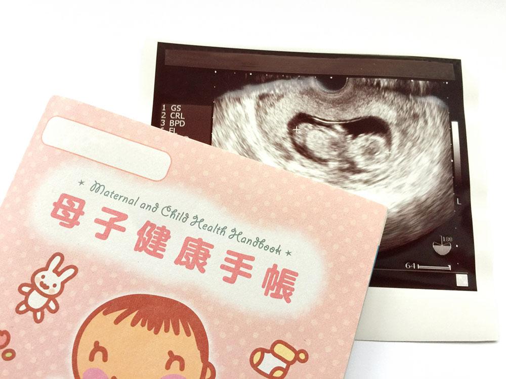 妊婦健診って何するの?妊婦健診の内容やスケジュールを知っておこう!